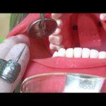 支台歯形成まとめ2